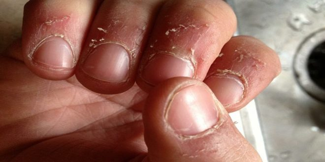 Peeling of skin around nails